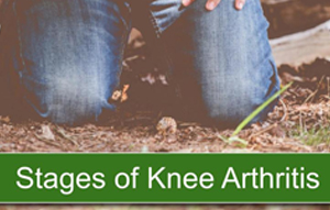 Stages of Knee Arthritis