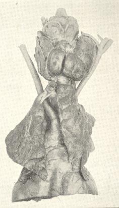 Non-resectional surgery for thyrotoxicosis
