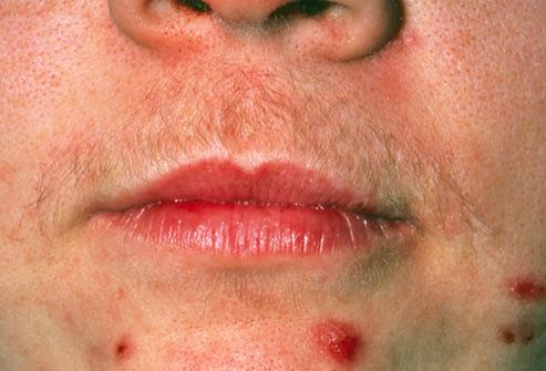 متلازمة المبيض المتعدد الكيسات (متلازمة تكيس المبايض) (Polycystic Ovary Syndrome (PCOS