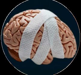 ConcussionInSport
