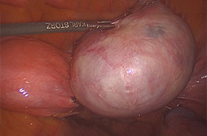 Large Right Ovarian Dermoid Cyst