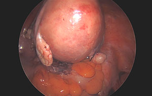 Laparoscopic Subtotal Hysterectomy for a Large Fibroid Uterus