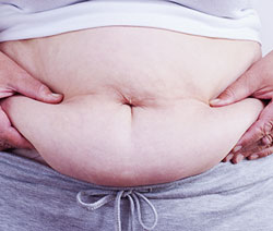 Study Shows Benefits of Bariatric Surgery for People With Diabetes