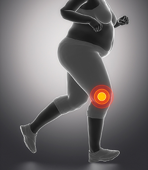 When it comes to weight loss in overweight and obese adults with knee osteoarthritis, more is better