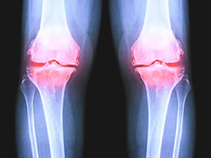Most people wait too long for knee replacement surgery