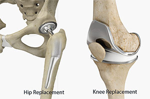 What to Know About Hip and Knee Replacements
