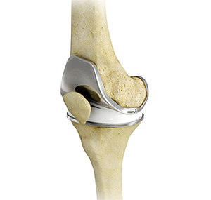 Joint Replacement: 5 Benefits of Outpatient Surgery