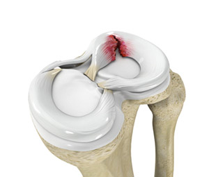 Study suggests surgery better than observation for older patients with meniscus tear.