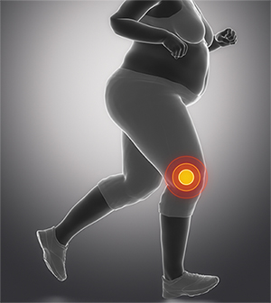 Study launched to see if weight loss surgery before knee replacement improves outcomes