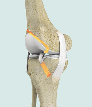 Young athletes who require ACL reconstruction may benefit from additional procedure
