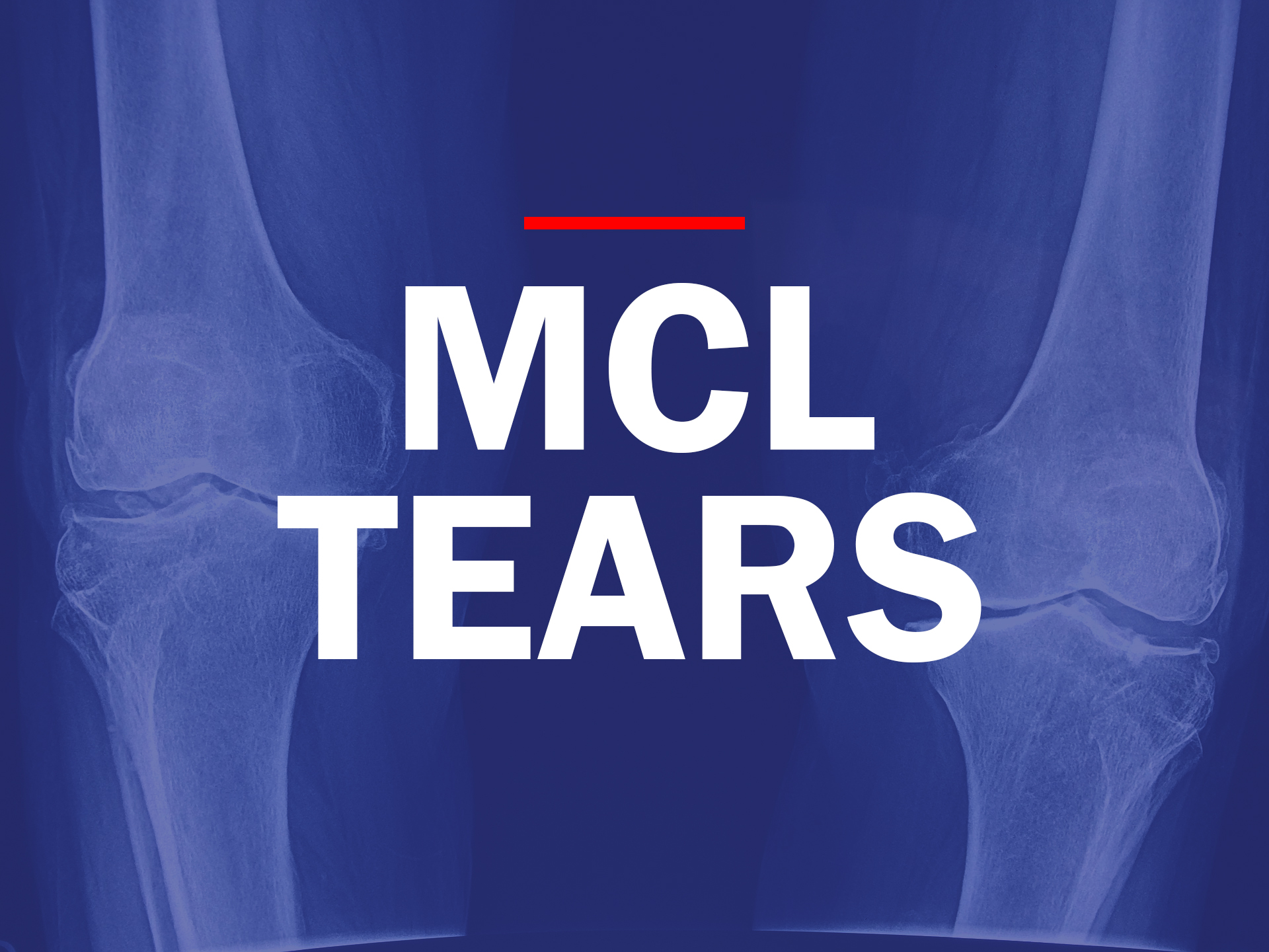 MCL tears in houston texas